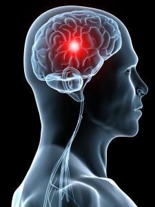signes-avc,stress-management-f-duval-levesque-psychotherapie-coach-psychopraticien-addiction-boulimie-dependance-depression-mal-etre-soutien-psy