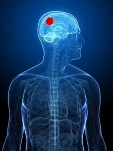 cancers_du_cerveau, glioblastome, -hypnose-f-duval-levesque-psychotherapie-coach-psychopraticien-hypnose-emdr-sophrologie-addiction-dependance-depression-mal-etre-soutien-psy-boulimie-addiction-sexuelle